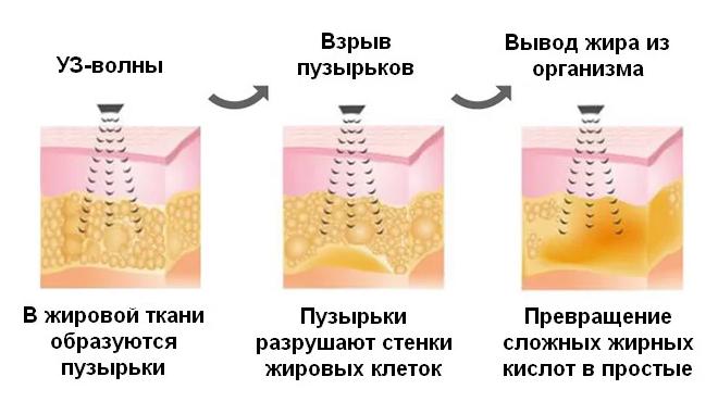 Блок ультразвуковой кавитации (40 кГц) для устранения недостатков фигуры www.sklad78.ru