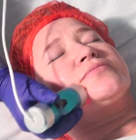 Процедура радиочастотный лифтинг, мезотерапия на аппарате ЭСМА 12.52F Санбриз